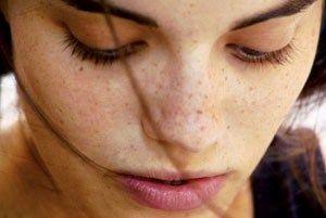 10 Кращих відбілюючих масок від пігментних плям і веснянок