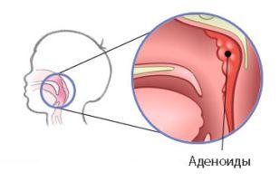Аденоїди: від комплексної та лазерної терапії до народних засобів