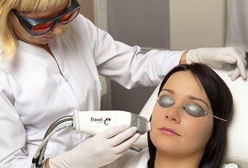 Що таке лазерний пілінг шкіри обличчя?