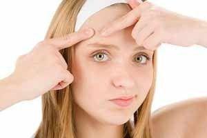 Домашня косметика від прищів - рецепти масок