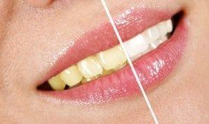 Досягнення мрії про білосніжну усмішку - народні засоби для відбілювання зубів