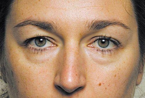 Набряклість обличчя і перші зморшки