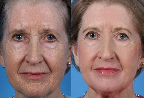 Глибокий пілінг для шкіри обличчя - в салоні або в домашніх умовах?