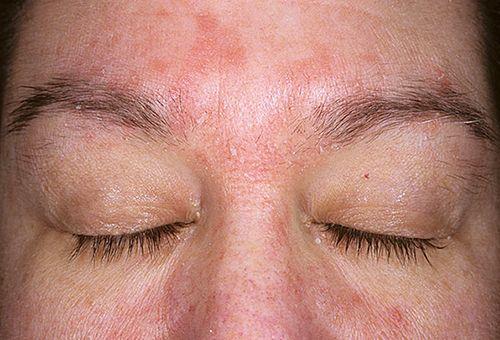 Ефективне лікування всіх видів дерматиту на обличчі
