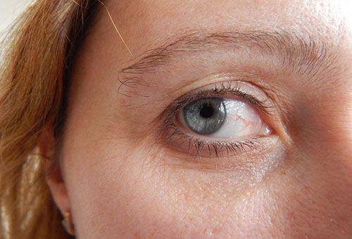Ефективні маски від зморшок навколо очей з доступних інгредієнтів