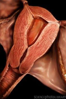 Ектопія (псевдоерозія шийки матки)