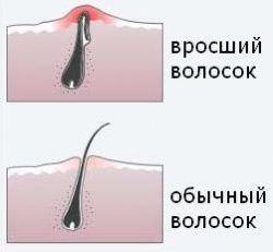 врослі волоски 1