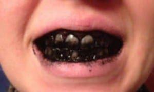 Чищення зубів активованим вугіллям