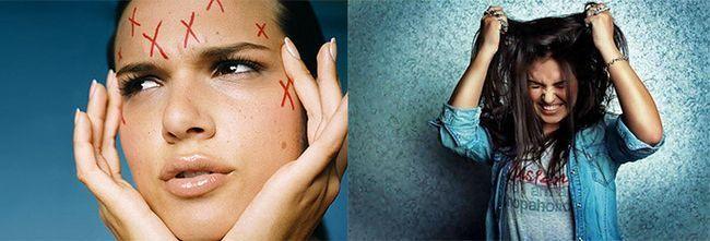 Як позбутися від дерматілломаніі або колупання шкіри