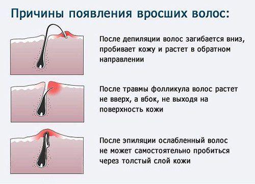 Як позбутися від врослого волосся після депіляції