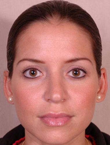 Як я омолоджує шкіру обличчя в 30 років
