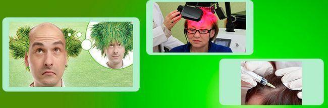Пересадка волосся, мезотерапія