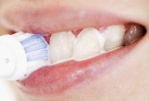Сода для зубів