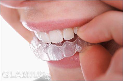 Відбілити зуби за допомогою капи