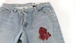 Як відіпрати кров з одягу?