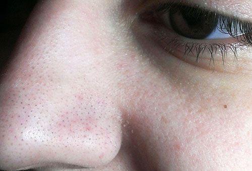 Як в домашніх умовах очистити обличчя від чорних крапок?