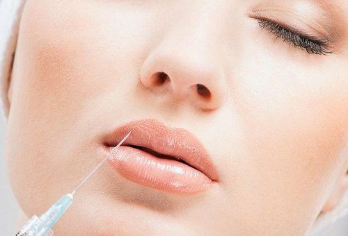 Які бувають препарати для збільшення губ і чим вони відрізняються?