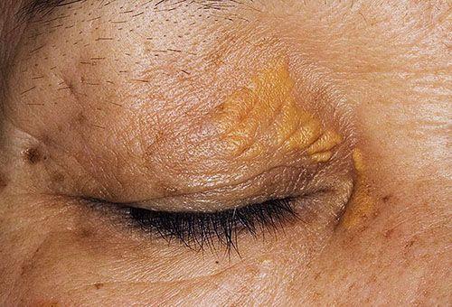 Які засоби допоможуть впоратися з жовтими плямами на обличчі?