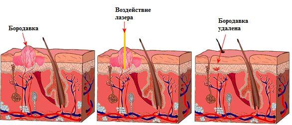 Косметичне лазерне видалення бородавок: опис методу