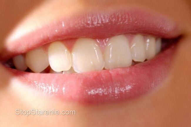 Красиві зуби: білизна здоров`ю не перешкода?