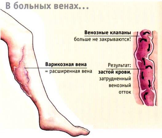 varikoz2