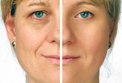 Ліфтинг-маски для шкіри обличчя в домашніх умовах: корисні поради щодо застосування