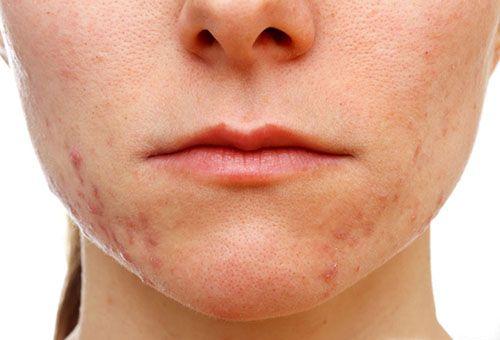 Найбільш поширені причини появи прищів на обличчі
