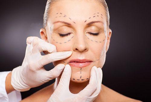 Особливості кругової підтяжки обличчя: переваги і недоліки