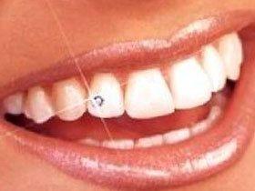 Відбілювання зубів народними засобами