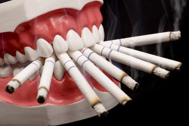 Куріння і зуби
