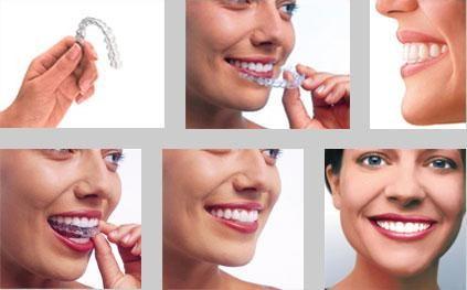 Капа для зубів