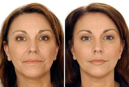 Плюси і мінуси підтяжки шкіри обличчя в домашніх умовах