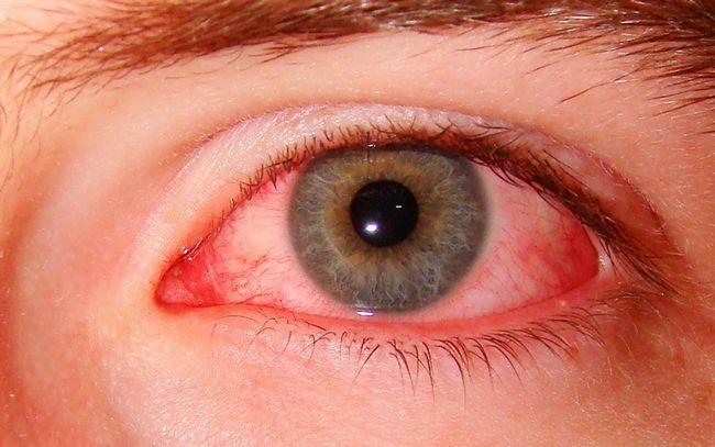 Чому червоні білки очей? Частина 1