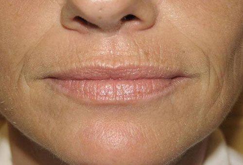 Показання до проведення ендоскопічної підтяжки обличчя