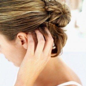 Перевірені народні засоби від псоріазу голови