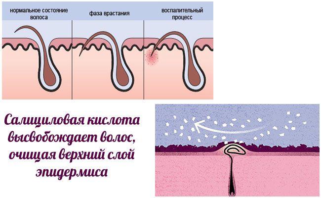 Саліцилова кислота проти врослого волосся