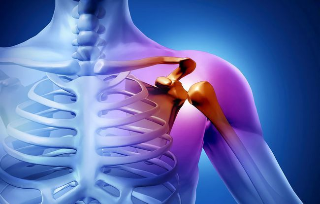 Найефективніші способи лікування захворювань плечового суглоба