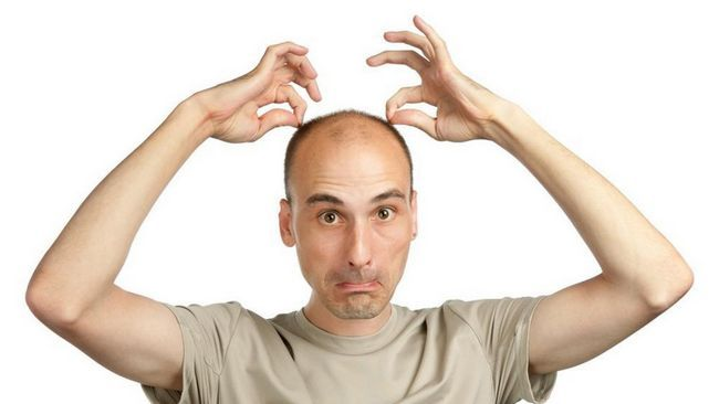 Сильна половина суспільства починає втрачати з віком волосся