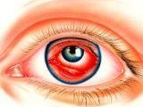 Усунення запалення ока за допомогою народних засобів