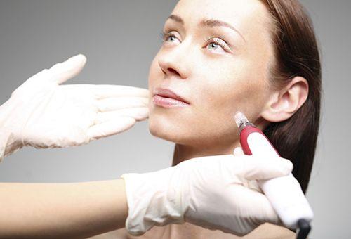 В яких випадках ефективна фракційна мезотерапія для шкіри обличчя?