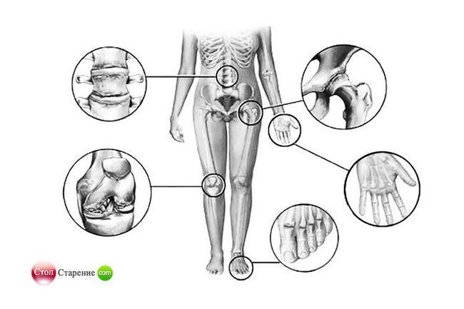 Вдм апарат для позбавлення від болю в суглобах